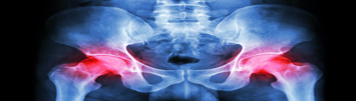 ASR Replacement Hip Recall Law Firm in Cleveland Ohio